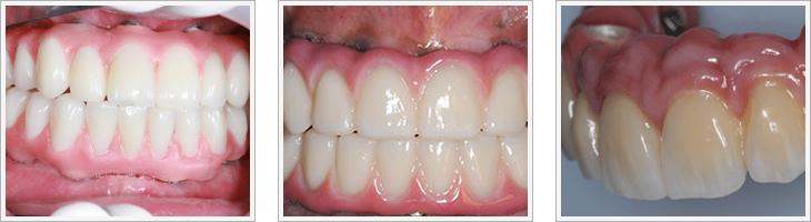 hybrid-denture-combined