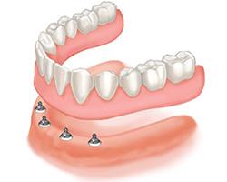 implant-over-denture-21