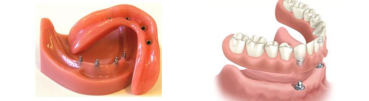 implant-over-denture